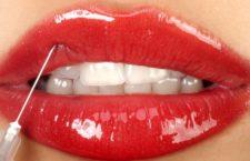 Что нужно знать об увеличении губ гиалуроновой кислотой
