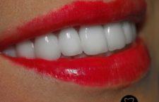 Центр отбеливания зубов claritas.pro