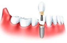 Зубы за 1 день по технологии «All‐on‐4»